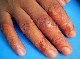 obat alergi manjur